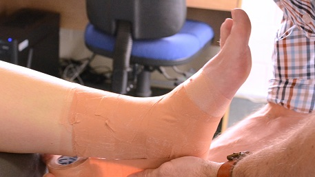 Foot with tape, physio, treatment method,